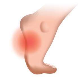 Ортопедические стельки, супинаторы