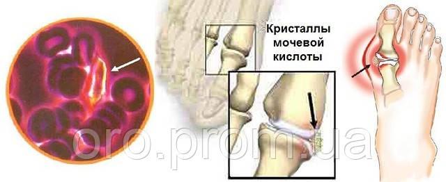 болит челюстной сустав при беременности