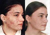 Вылечим самую проблемную кожу