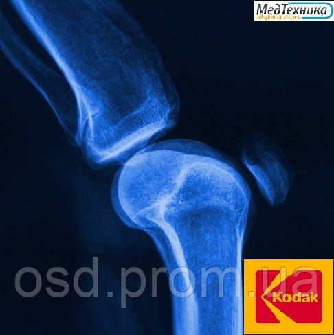 Рентгеновская пленка KODAK MXB Film (КОДАК) Синечувствительная