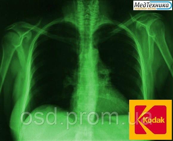 Рентгеновская пленка KODAK MXB Film (КОДАК) Зеленочувствительная