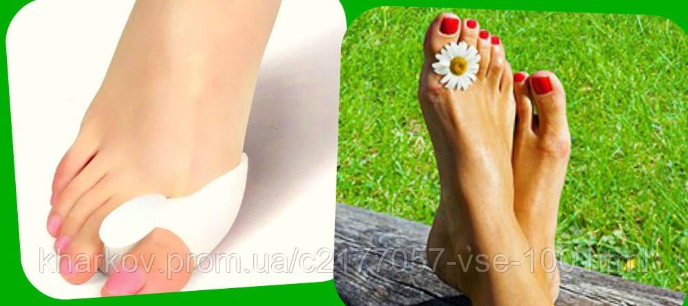 Как убрать косточки на пальцах ног в домашних условиях