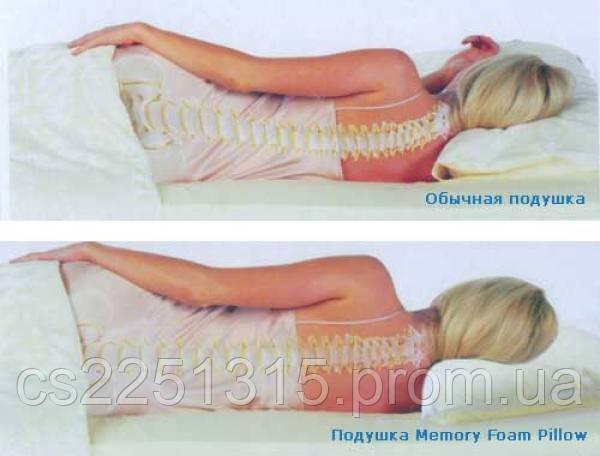 Как нужно спать при шейном остеохондрозе