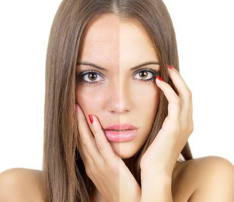 Как сделать лицо ровного цвета лица