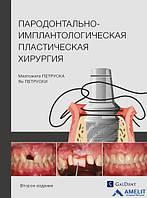 Пародонтально-имплантологическая пластическая хирургия. Второе издание