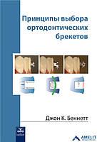 Принципы выбора ортодонтических брекетов