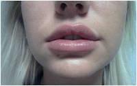 Увеличить губы техникой вертикальных вколов.Парижские губки