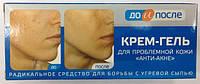 Твинс Тэк, Россия ДО и После Анти-Акне крем-гель для проблемной кожи 50мл