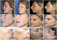 Причины проявления пятен на лице (пигментация кожи)
