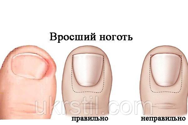 шерстяное врастают ногти на ногах что делать обзор