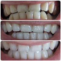 Отбеливающие полоски для зубов Crest 3d White Luxe Whitestrips Professional Effects