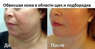 Из за чего обвисает кожа на подбородке