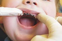 Импрегнация зубов серебром