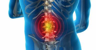 Межпозвоночная грыжа: симптомы, причины, лечение