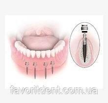 Отдельные импланты для верхней челюсти классические с шаровидной головкой