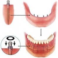 Отдельные импланты для нижней челюсти фланцевые с квадратной головкой