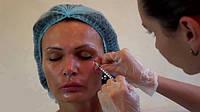 О чем молчат косметологи. Можно ли отказаться от инекций Ботокса?