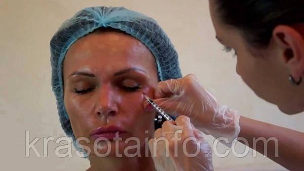 О чем молчат косметологи. Можно ли отказаться от инъекций Ботокса?