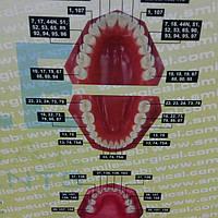 НАБІР ЩИПЦІВ SS SMILE ПАКИСТАН 10 ШТ,хирургические щипцы клещи для удаления зубов СС Смайл Пакистан