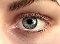 В чем причина появления морщин вокруг глаз?