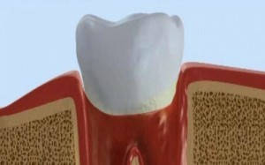 Как почистить зубной налет: советы