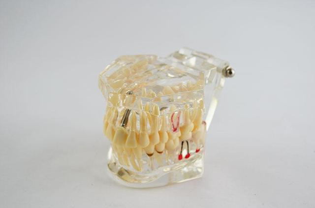 Демонстрационные модели зубов