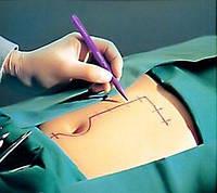 Маркер хирургический для разметки операционного поля Apexmed