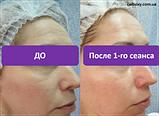 Неинвазивная карбокситерапия Carboxy CO2 (10процедур Корея) Daejong Medical, фото 3
