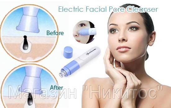Spot cleaner очиститель пор для лица