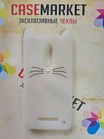 Объемный 3D силиконовый чехол для Xiaomi Redmi Note 3 / Xiaomi Redmi Note 3 Pro Усатый кот белый