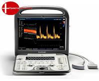 Портативный УЗИ Sonoscape S6
