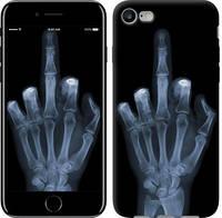 "Чехол Рука через рентген ""1007c-336-9602""Для Apple, Samsung, Nokia, HTC, Sony, Lenovo, Xiaomi, Meizu и др."