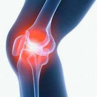 Рекомендуемые препараты дл лечения связок и суставов