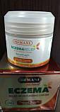 Крем от экземы и псориаза Hemani  Eczema Relif Moisturizing  Cream 50мл, фото 2