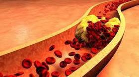 Нормализация уровня Холестерина