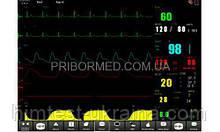 Монитор пациента ОБЕРЕГ 120E