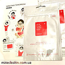 COSRX Acne Pimple Master Patch - SOS пластыри анти-акне