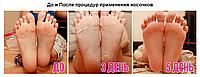 Педикюрные носочки, фото 1