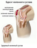 Бурсит — воспаление слизистых сумок преимущественно в области суставов.