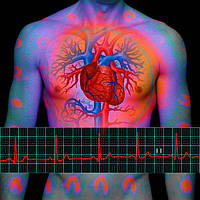 Лечение атеросклероза сосудов, снижение холестерина,  коллоидные препараты Арго Ad Medicine