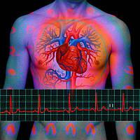 Ишемическая болезнь сердца, стенокардия, тромбы, атеросклероз Коллоидные препараты Арго Ad Medicine