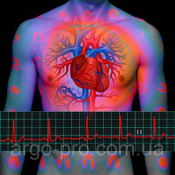Инфаркт миокарда, реабилитация, атеросклероз, холестерин, для сердца, сосудов Коллоидные фитофорулы Арго