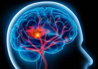Инсульт, лечение, реабилитация Коллоидные фитоформулы Арго Ad Medicine