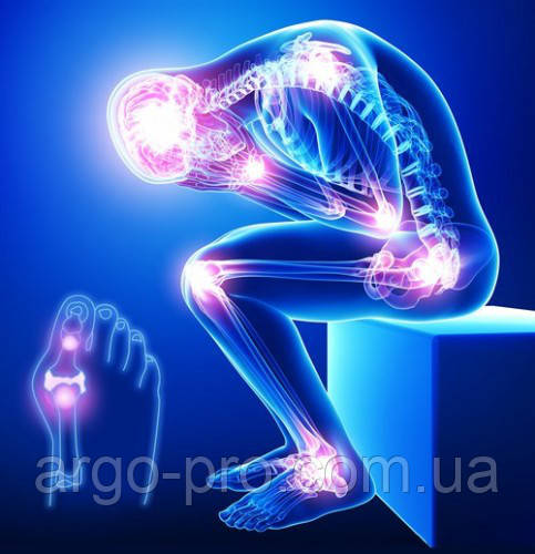 Лечение суставов, позвоночника, артроз, остеохондроз, межпозвоночные грыжи, питание хряща, укрепление костей