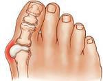 Valgosocks - носочки от косточки, фото 8