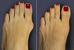 Valgosocks - носочки от косточки, фото 9