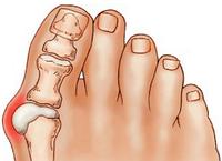 Китайский пластырь от гиперостоза, «косточки» на ноге «Hyperosteogeny»