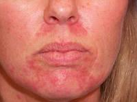 Атопический дерматит - избавьтесь навсегда с крем-воском Здоров