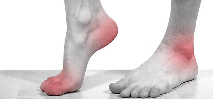Лечение подагры и подагрического артрита