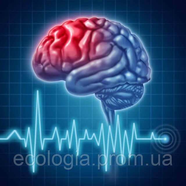 Профилактика инсульта: как улучшить состояние сосудов